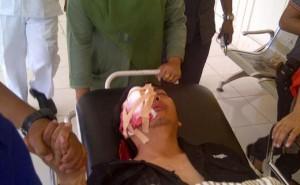 Anton Nugroho, wartawan Trans7 yang tertembak saat meliput aksi demo menentang kenaikan harga BBM di Jambi.